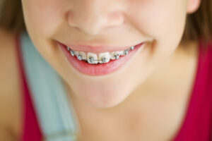 Child-Orthodontics